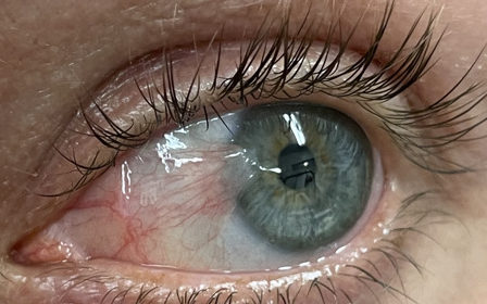 How to prevent Pterygium recurrence by performing Cosmetic Pterygium Eye Surgery